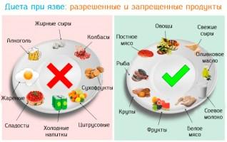 Если не есть эти агрессивные продукты можно избежать весеннего обострения язвы