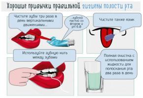 За рамками кариеса почему важна хорошая гигиена полости рта