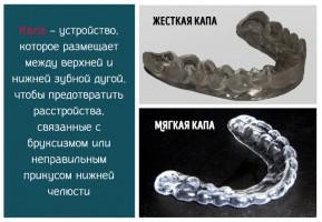 Капы для зубов – что это такое, как используются и противопоказания