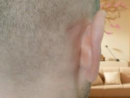 Шишка за ухом – отчего она появляется