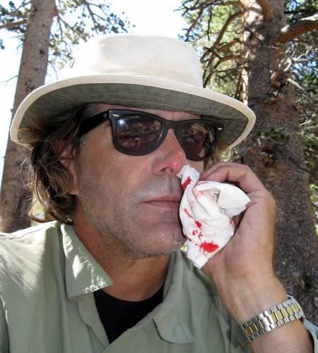 Спонтанное носовое кровотечение в лесу