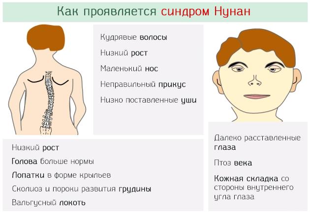 Каким образом проявляется синдром Нунан