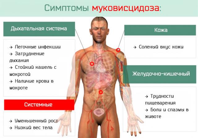 По каким симптома можно диагностировать муковисцидоз