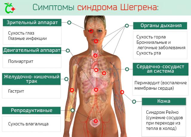 Симптомы синдрома Шегрена