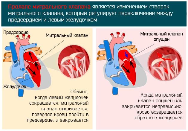 Пролапс митрального клапана является изменением створок митрального клапана
