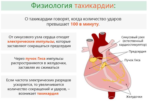 Тахикардия желудочков сердца и предсердий