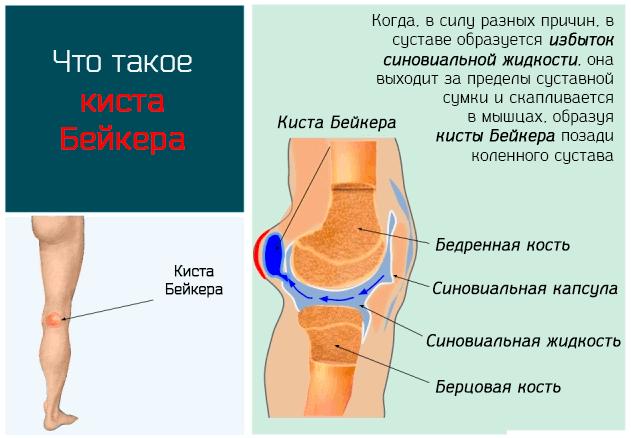 Двусторонняя киста бейкера коленного сустава