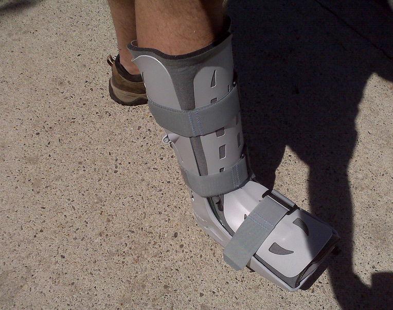 Переломы плюсневых костей и пальцев ног – виды и лечение ...