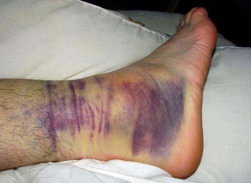 Синяк при голеностопном переломе