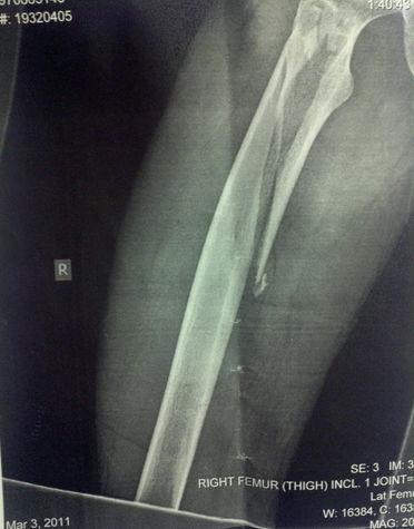 Рентгеновский перелом кости бедра