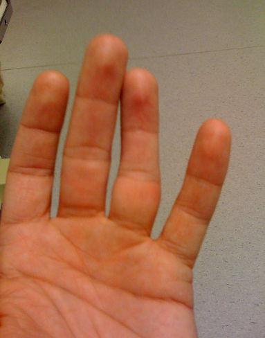 Искривление пальца при вывихе