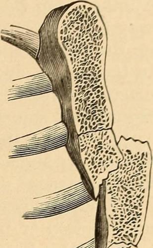 Перелом кости грудины – схематичное изображение