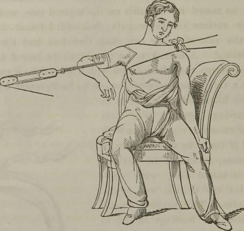 Вправление плеча с помощью растяжек