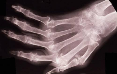 Рентгеновский снимок кисти руки – артрит