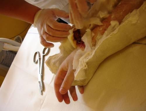 Смена гипсовой повязки при переломе запястья