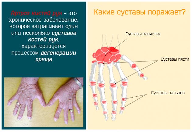 Артроз кистей рук – это хроническое заболевание