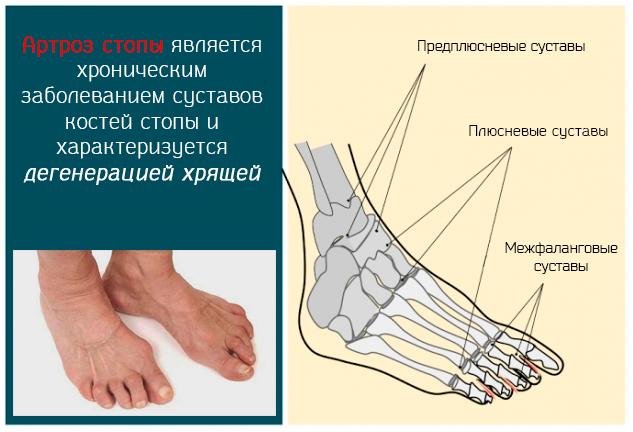 Хронический артроз сустав ступни ног