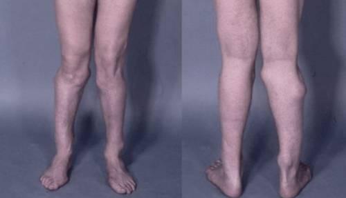 Вальгусное искривление колен