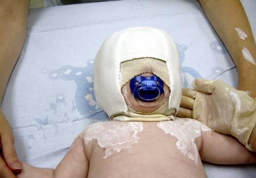 Иногда, для исправления кривошеи у младенца, требуется наложение гипсовой повязки