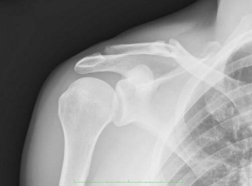 Перелом ключицы – рентгеновский снимок