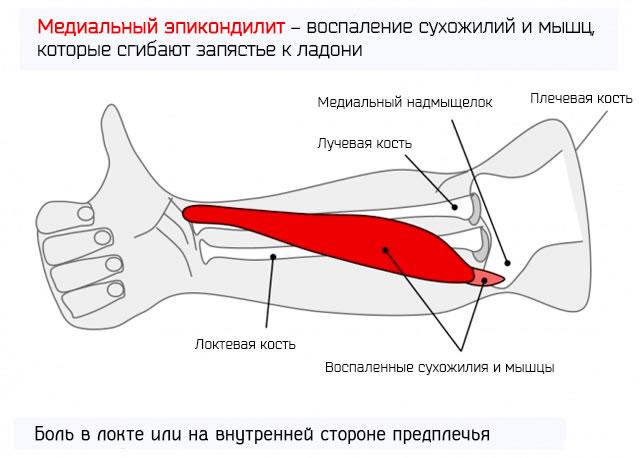 Медиальный эпикондилит – воспаление сухожилий и мышц, которые сгибают запястье к ладони