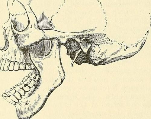 Смещение челюсти при вывихе сустава