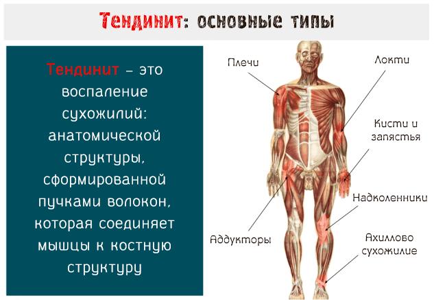 Раздражения из мышц связок сухожилий суставов воспринимаются