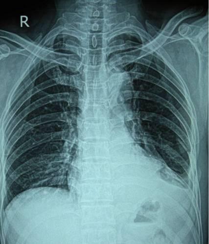 Рентген грудной клетки при переломе ребер