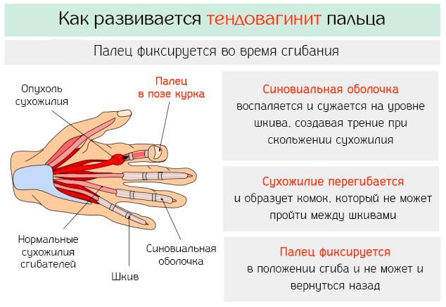 Как развивается воспалительный тендовагинит пальца
