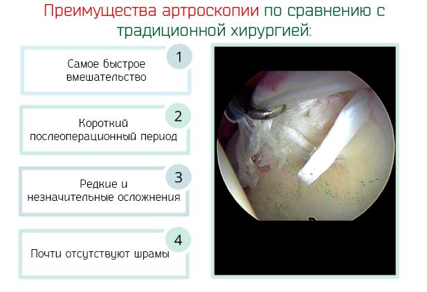 Преимущества артроскопии по сравнению с традиционной хирургией