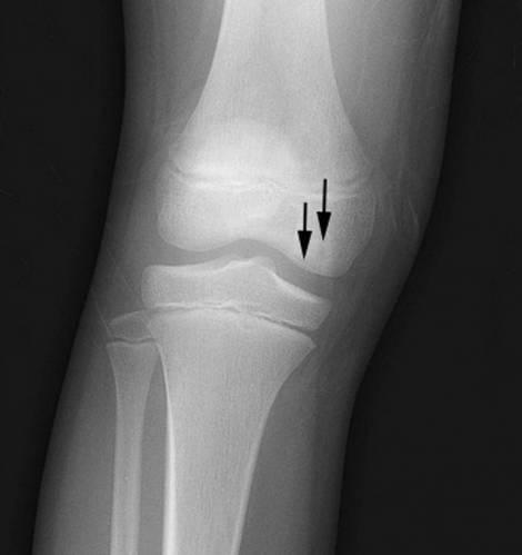 Некроз коленного сустава – рентген изображение