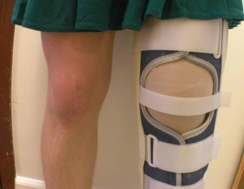 Фиксация ноги при вывихе коленного сустава