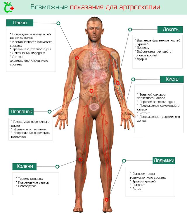 Возможные показания для проведения артроскопии на суставе