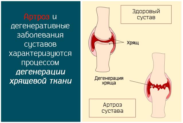 Артроз и дегенеративные заболевания суставов характеризуются процесс дегенерации хрящевой ткани