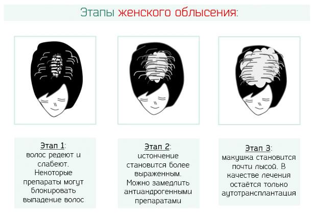 Этапы женского облысения головы