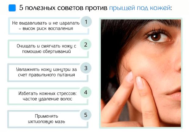 5 полезных советов лечения прыщей под кожей