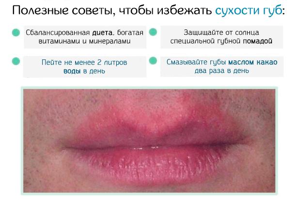Полезные советы чтобы избежать сухости губ