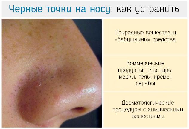 Черные точки на носу как избавится в домашних условиях 131