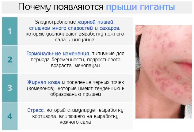 prichinoy-ugrevoy-sipi-yavlyayutsya-narusheniya-raboti-kishechnika-prostitutki-v-solntsevo-s-apartamentami