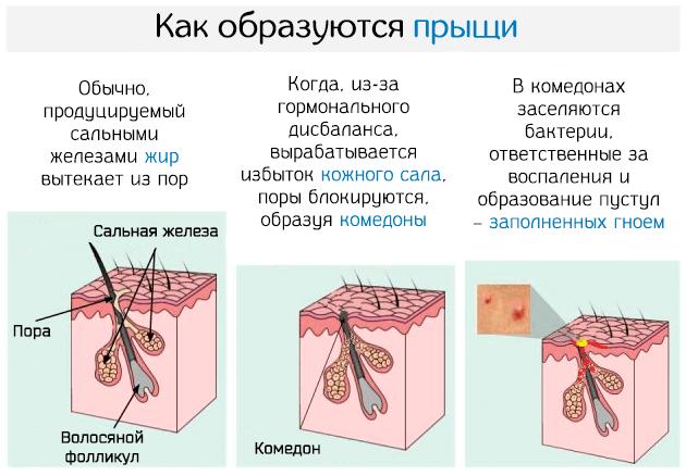 Как происходит образование прыщей на коже