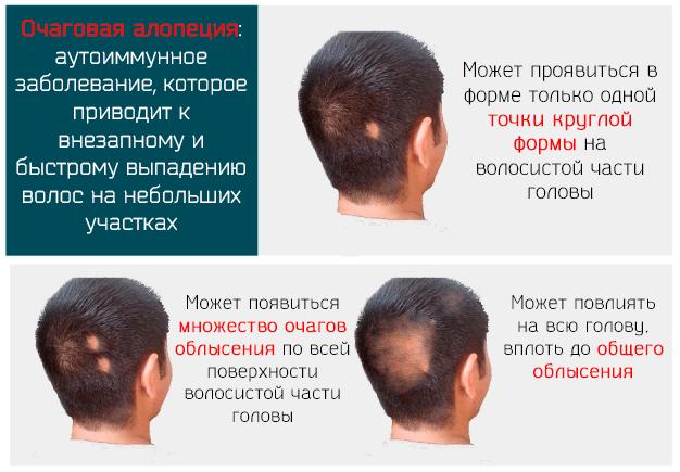 Очаговая алопеция: аутоиммунное заболевание, которое приводит к внезапному и быстрому выпадению волос