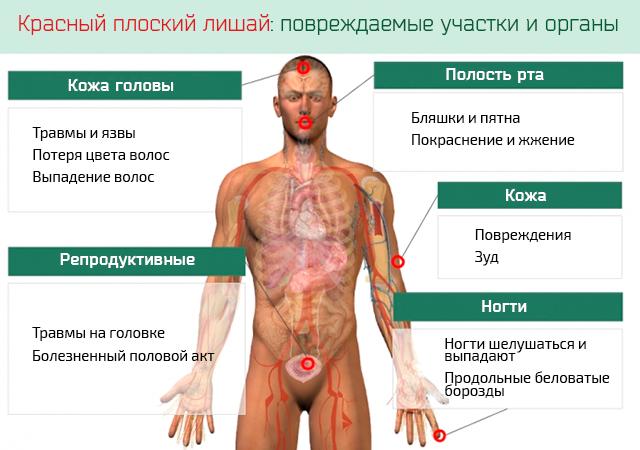 Красный плоский лишай: повреждаемые участки и органы