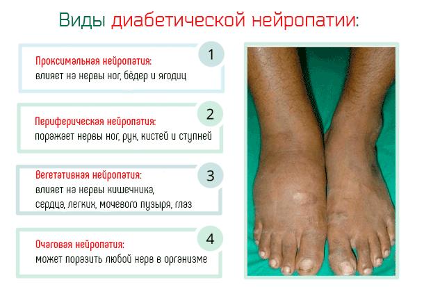 Полинейропатия симптомы при сахарном диабете у