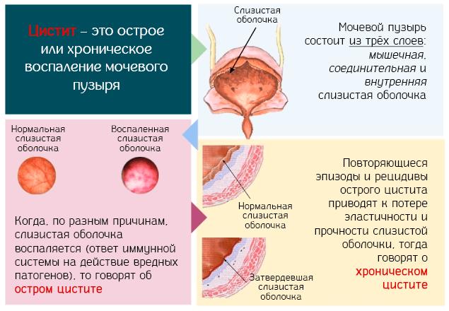Цистит – это острое или хроническое воспаление мочевого пузыря
