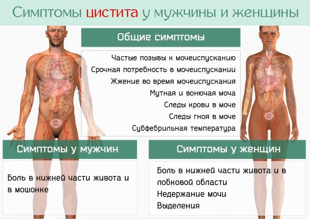 Симптомы цистита у мужчины и женщины