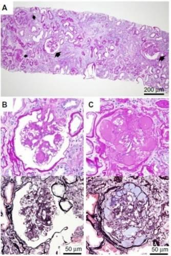 Результат биопсии почек при нефротическом синдроме