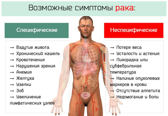 Возможные симптомы онкологических заболеваний у человека