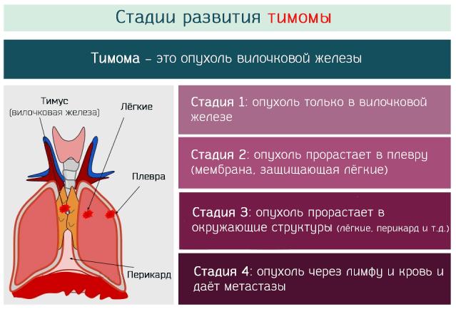 Стадии развития опухоли вилочковой железы