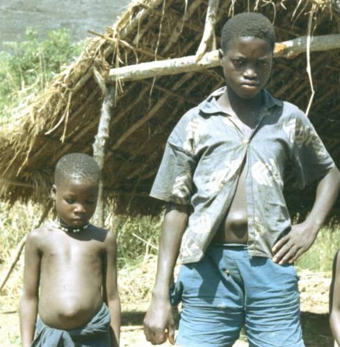 Дети с пупочной грыжи. Снимок сделан возле Kakoya, Сьерра-Леоне