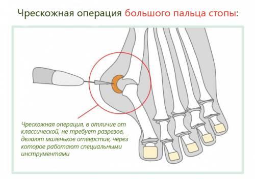 Чрескожная операция большого пальца стопы